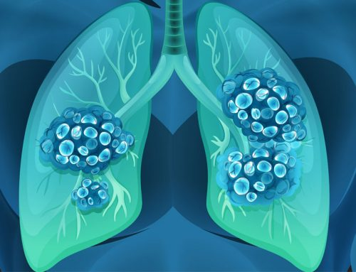 Monthly highlight: November is Lung Cancer Awareness Month